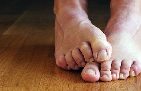 Как лечить ногти от слоения